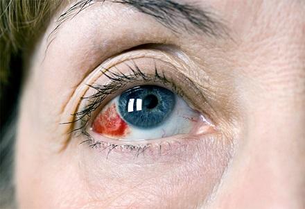 Глазные капли для сосудов глаз