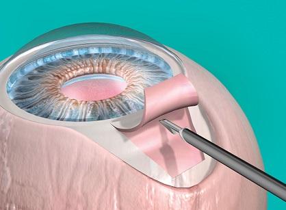 Шунтирование глаза при глаукоме
