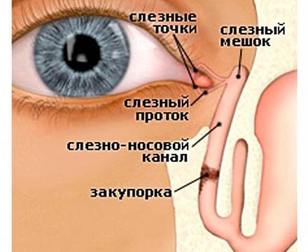 Лечение дакриоцистита у