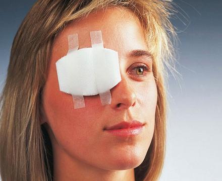 Ограничения после операции на глаза