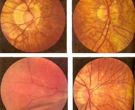 Близорукость после травмы глаза