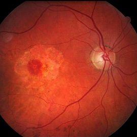 Резко ухудшилось зрение одного глаза и болит голова
