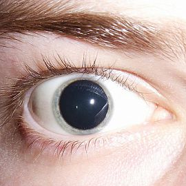 Коррекция зрения орлиный глаз