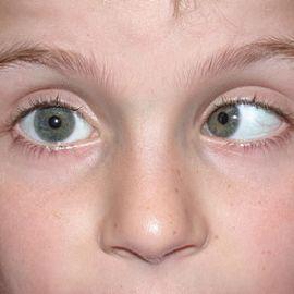 Гимнастика для глаз для улучшения зрения по норбекову