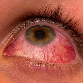 Гиперемия конъюнктивы глаза - что это, причины | Конъюктивальная ...