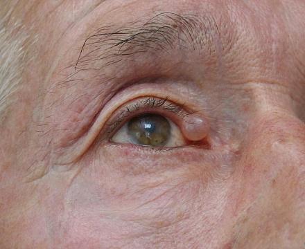 аллергия на веке глаза лечение