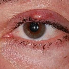 Ячмень на глазу как лечить в период лактации