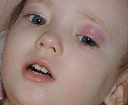 Народные методы лечения ребенка от простуды