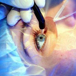 Восстановление зрения после лазерной операции