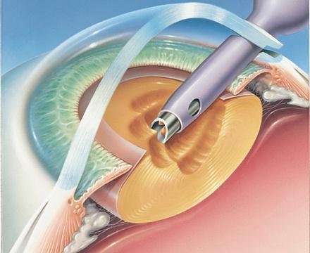 Ограничения после операции на глаза лазером
