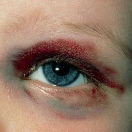 Туп406 травми органа зору (контуз406407)