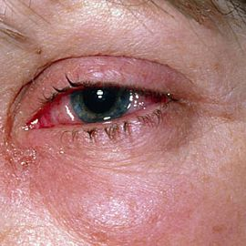 Как лечить аллергию на веках от косметики