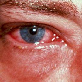 фото эрозия роговицы глаза
