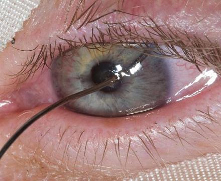 Что делать если попал в глаз палкой