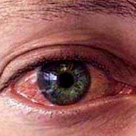 Болят глаза в уголках у носа