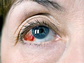 Укрепление сосудов глаз - сосуды глаз, ангиопатия