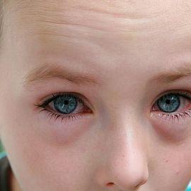 От чего опухают веки глаз и болят