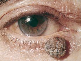 Злокачественные опухоли века: причины развития, симптомы, лечение - веко, опухоль века