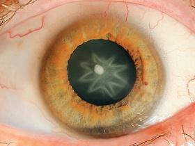 Катаракта при сахарном диабете - катаракта, диабет