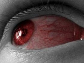 Красные белки глаз – что делать? - покраснение, красные, резь, что делать, устают