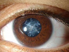 Что такое катаракта - катаракта, помутнение хрусталика